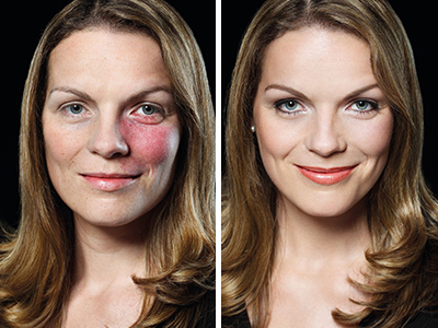 young woman before with firemark, after with camouflage